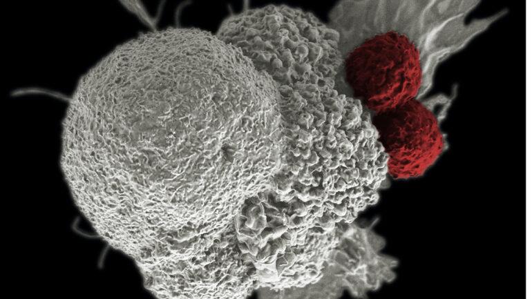 Krebsliga: Rückblick auf ein herausforderndesJahr